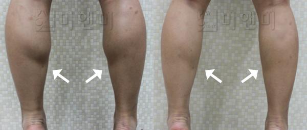 근육다리 쫑알주사로 개선